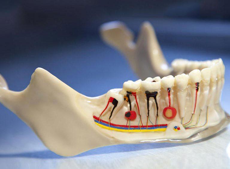 ¿Es doloroso un tratamiento de endodoncia?