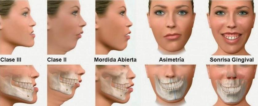 Ortondocia - Tipos de alteraciones orales más frecuentes