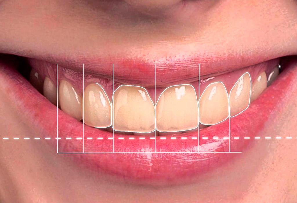 Diseño Digital de Sonrisa en Terrassa