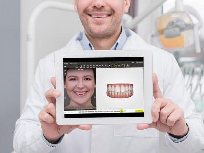 ¿Qué es el diseño digital de sonrisa en Terrassa?