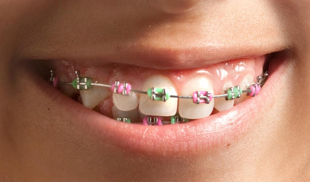 Ortodoncia infantil en Terrassa